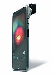Smartphone-Funduskamera D-Eye