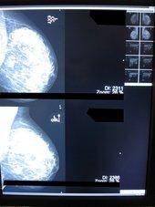 Mammographie Workstation